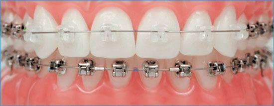 Choose-Typodont-Teeth